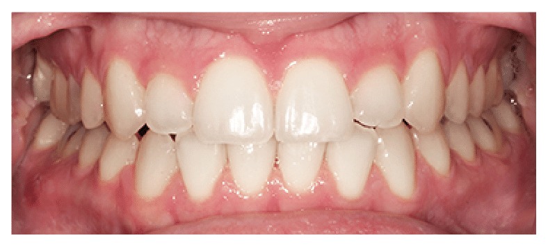 After Six Month Smiles Treatment at Dental Touch