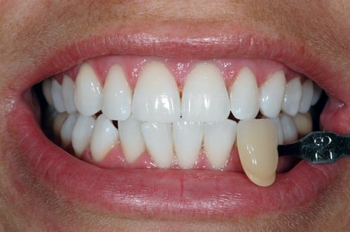 After Teeth Whitening treatment At Dental Touch Bristol