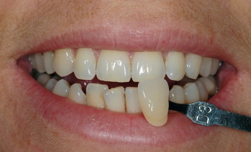 Before Teeth Whitening treatment At Dental Touch Bristol