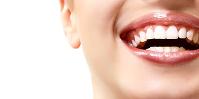 Tooth whitening Bristol