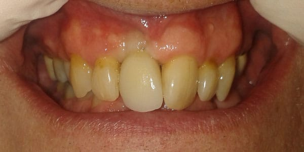 After Dental Implants in Bristol
