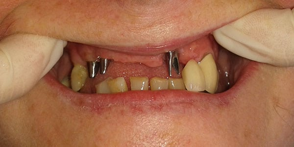 Bristol Patient missing multiple front teeth