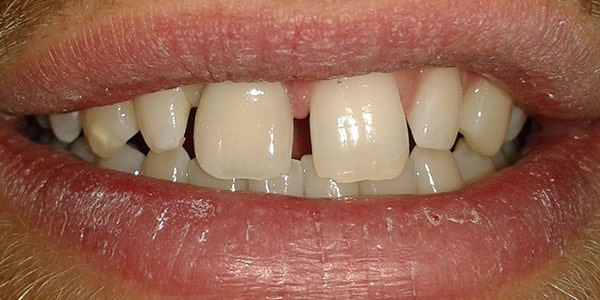 After Dental Implants in Bristol