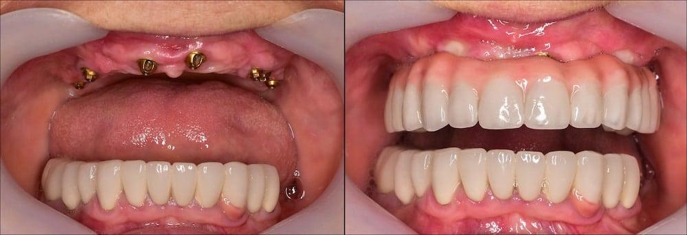 All On 4 Dental Implants Bristol